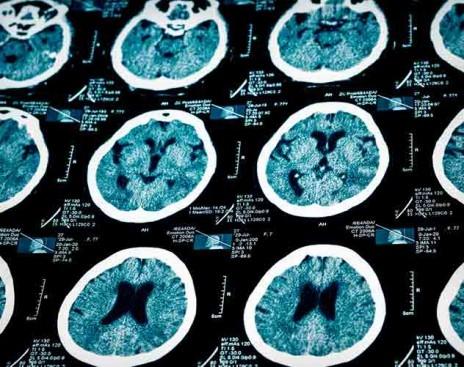 Лучшие сосудистые препараты для улучшения кровообращения головного мозга